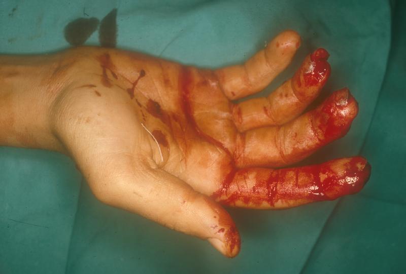 Como curar las uñas que se estratifican en las manos